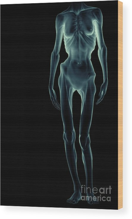 Body Dysmorphia Wood Print featuring the photograph Anorexia by Science Picture Co