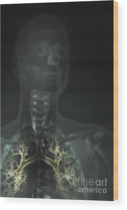 Biomedical Illustration Wood Print featuring the photograph Internal Lung Anatomy by Science Picture Co