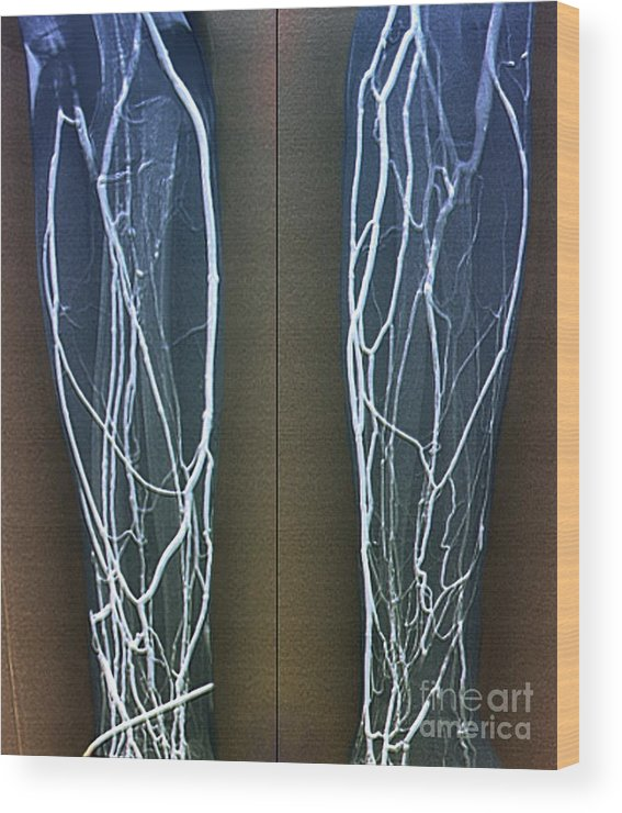 Vein Wood Print featuring the photograph Forearm Veins, X-ray by Zephyr