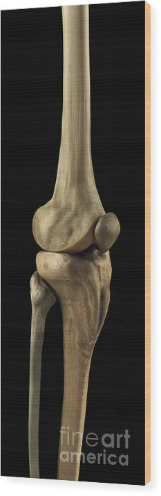 Biomedical Illustration Wood Print featuring the photograph Knee Bones Right by Science Picture Co