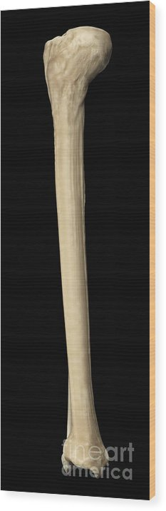 3d Visualisation Wood Print featuring the photograph Tibia And Fibula by Science Picture Co
