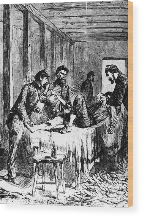 1860s Wood Print featuring the photograph Civil War: Amputation by Granger