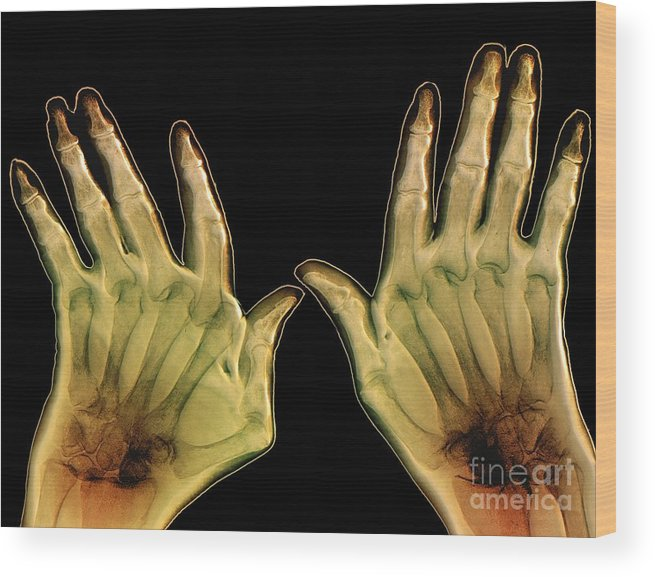Rheumatoid Arthritis Wood Print featuring the photograph Arthritic Hands, X-ray by Zephyr