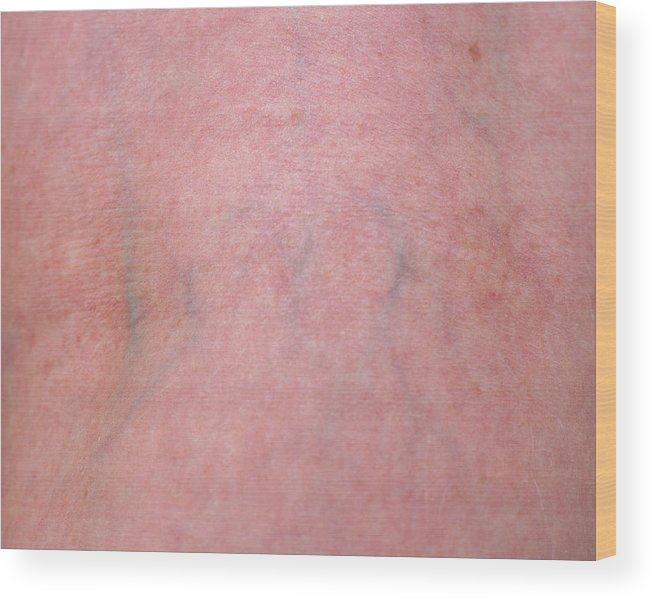 Blood Vessel Wood Print featuring the photograph Skin by Joti/science Photo Library