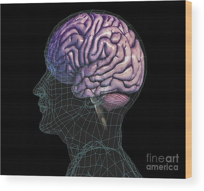 Organ Wood Print featuring the photograph Healthy Brain, Mri Scan by Zephyr