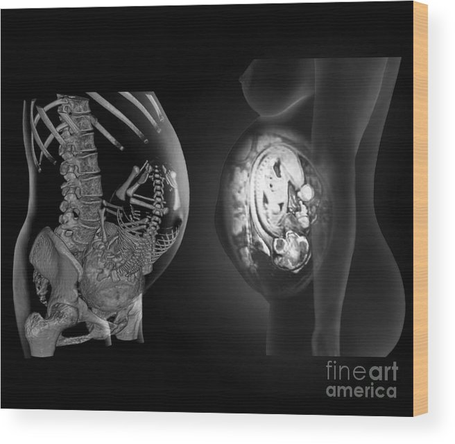 Foetus Wood Print featuring the photograph Full Term Foetus, Ct And Mri Scans by Zephyr