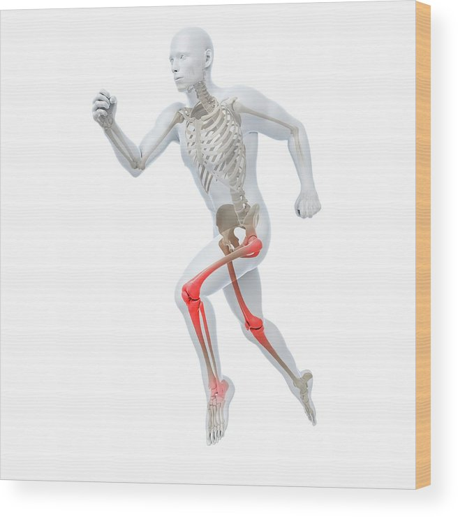 Male Wood Print featuring the photograph Joint Pain by Sciepro/science Photo Library