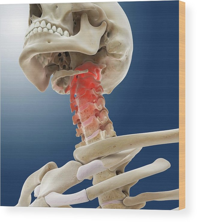 Bone Wood Print featuring the photograph Neck Pain by Springer Medizin/science Photo Library