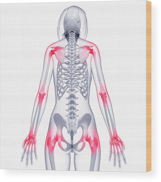 Artwork Wood Print featuring the photograph Joint Pain by Pixologicstudio/science Photo Library