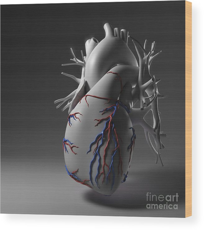 Digitally Generated Image Wood Print featuring the photograph Coronary Vessels by Science Picture Co