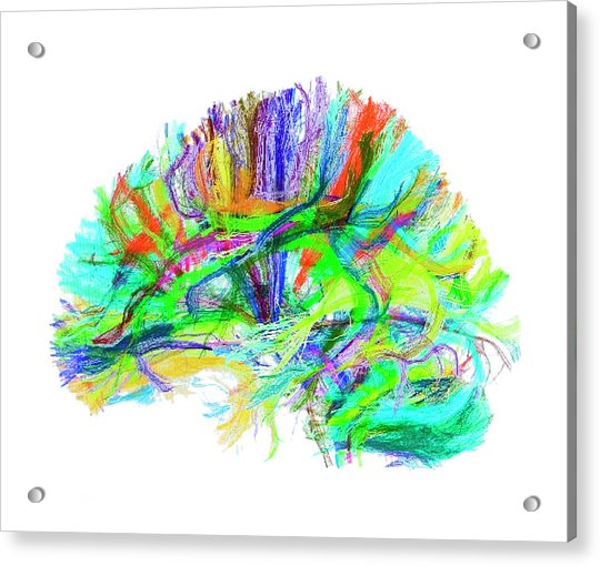 Advanced Mri Brain Scan Acrylic Print by Philippe Psaila/science Photo Library