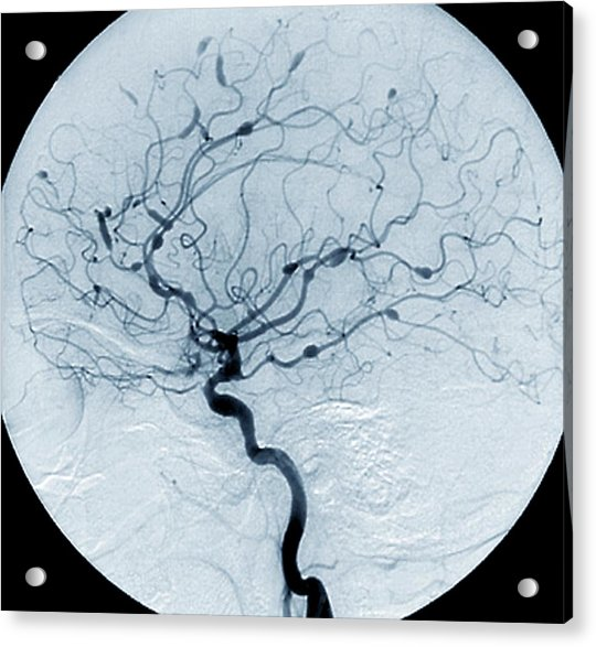 Cerebral Aneurysms In Lupus Acrylic Print by Zephyr/science Photo Library