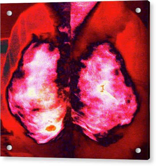 Mammogram Acrylic Print