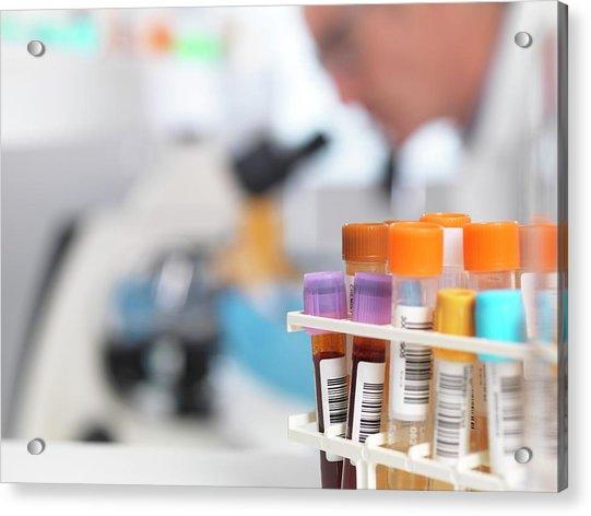 Medical Tests Acrylic Print