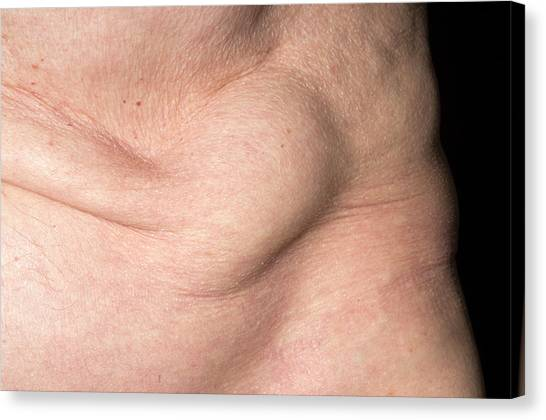 Abdominal Hernia Photograph by Dr P  Marazzi/science Photo Library