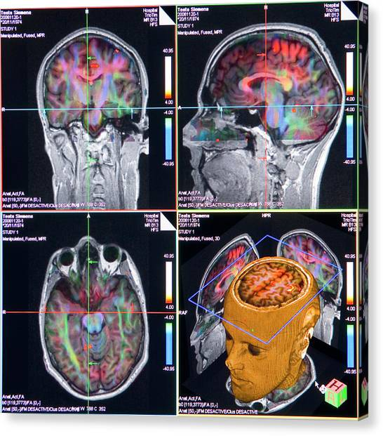 Advanced Mri Brain Scans Canvas Print by Philippe Psaila/science Photo Library