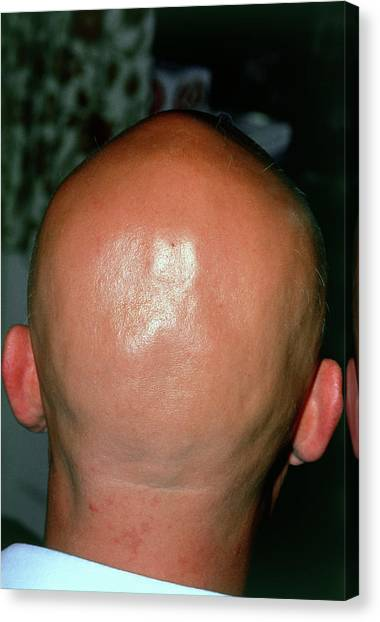 Alopecia Areata (hair Loss) Over The Scalp Of Man Canvas Print by Dr P. Marazzi/science Photo Library