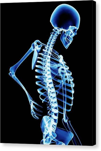 Back Pain Canvas Print by Pasieka