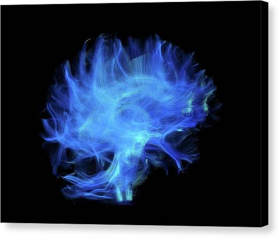 Nerves Canvas Print - Brain Fibres by Sherbrooke Connectivity Imaging Lab/science Photo Library