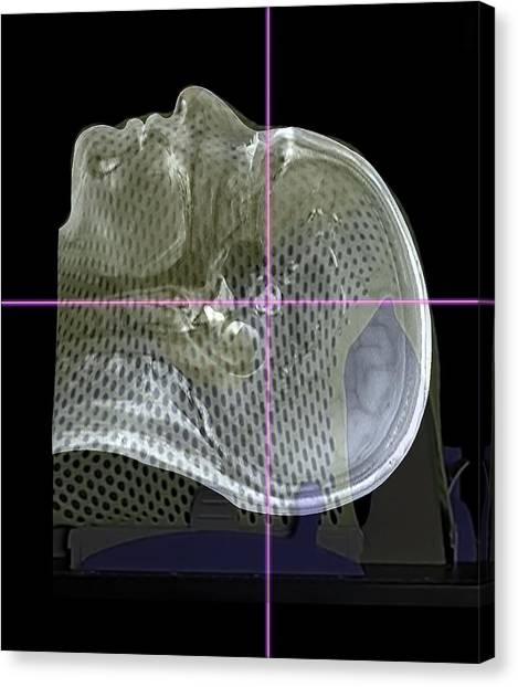 Neoplasm Canvas Print - Brain Tumour Radiotherapy Treatment by Zephyr