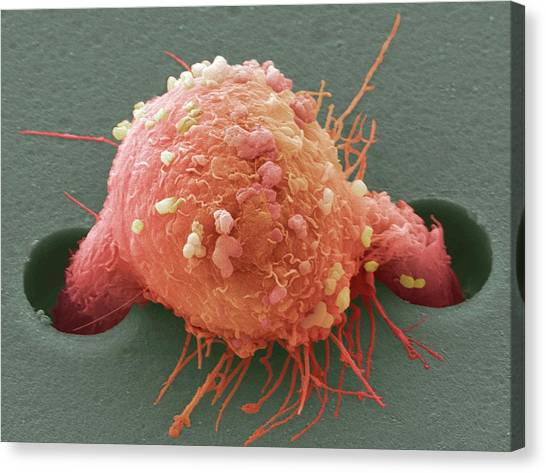 Breast Cancer Canvas Print - Breast Cancer Cell by Steve Gschmeissner