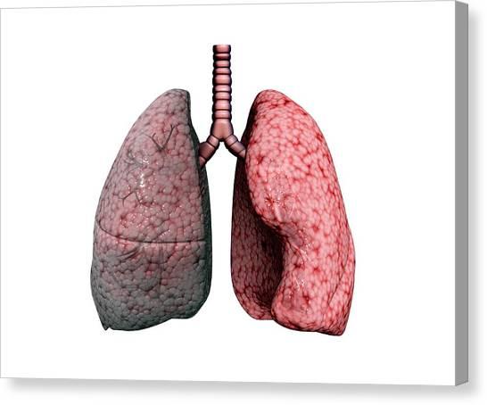 Chronic Canvas Print - Chronic Obstructive Pulmonary Disease by Gunilla Elam/science Photo Library