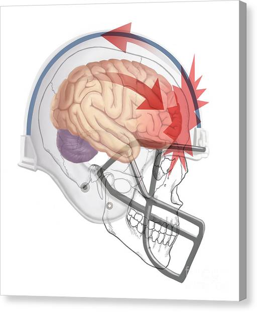 Concussion Canvas Prints   Fine Art America