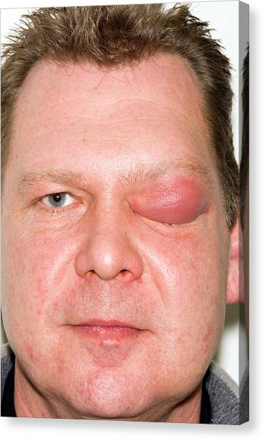 Eyelid Abscess Canvas Print by Dr P. Marazzi/science Photo Library
