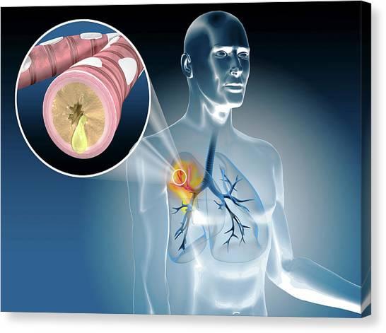3d Visualization Canvas Print - Illustration Of Bronchitis by Harvinder Singh