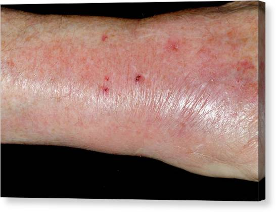 Infected Cat Bite On The Wrist Canvas Print by Dr P. Marazzi/science Photo Library