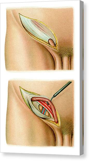 Inguinal Hernia Surgery Canvas Print by Science Photo Library