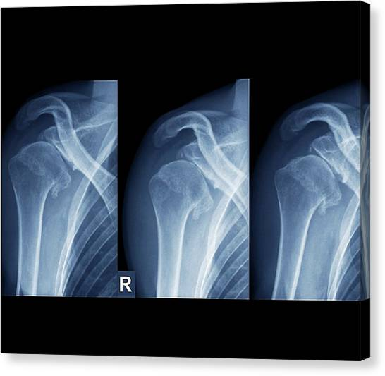 X Ray Canvas Print - Injured Shoulder by Zephyr