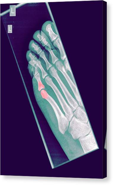 Ankles Canvas Print - Intermediate Phalanx X-ray by Photostock-israel