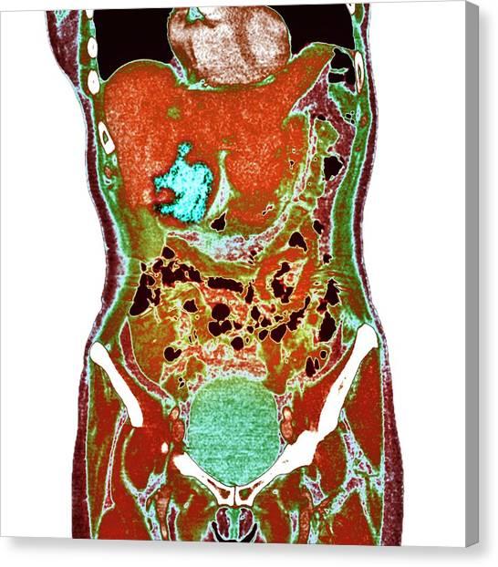 Abdomen Canvas Print - Liver Cancer by Dr P. Marazzi