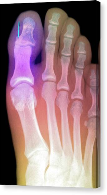 Toes Canvas Print - Needle Stuck In Toe by Du Cane Medical Imaging Ltd