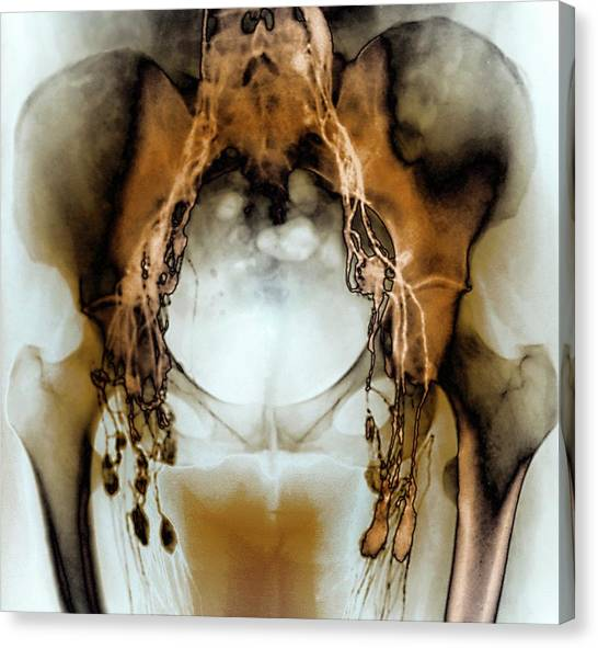 Groin Canvas Print - Normal Pelvic Lymphatic System by Zephyr