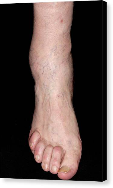 Ankles Canvas Print - Osteoarthritis Of Ankle by Dr P. Marazzi/science Photo Library