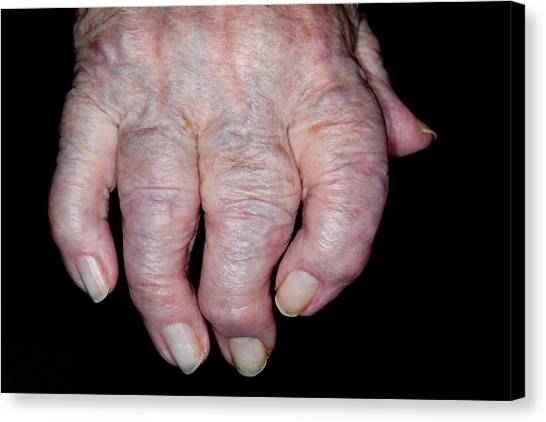 Osteoarthritis Of The Hand Canvas Print by Dr P. Marazzi/science Photo Library