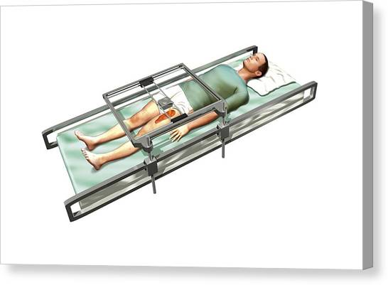 Printers Canvas Print - Patient In 3d Skin Printer by Henning Dalhoff