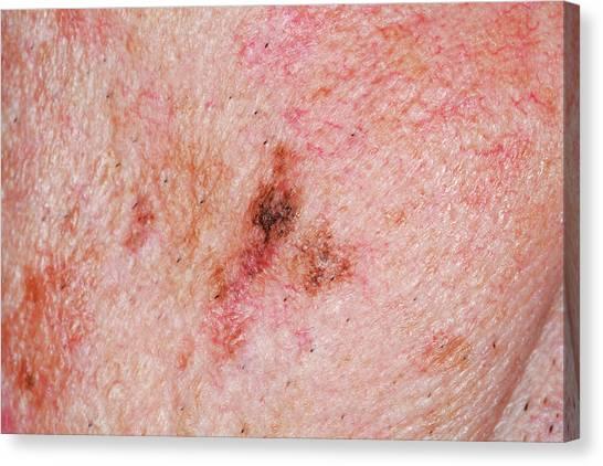 67 Canvas Print - Precancerous Skin Lesion by Dr P. Marazzi/science Photo Library