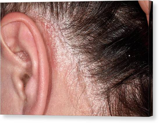 Chronic Canvas Print - Psoriasis On The Scalp by Dr P. Marazzi/science Photo Library