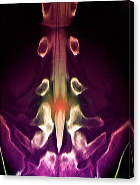 Slipped Disc Canvas Print by Zephyr/science Photo Library