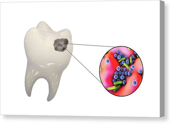 Cavity Canvas Print - Tooth Decay And Bacteria by Kateryna Kon/science Photo Library