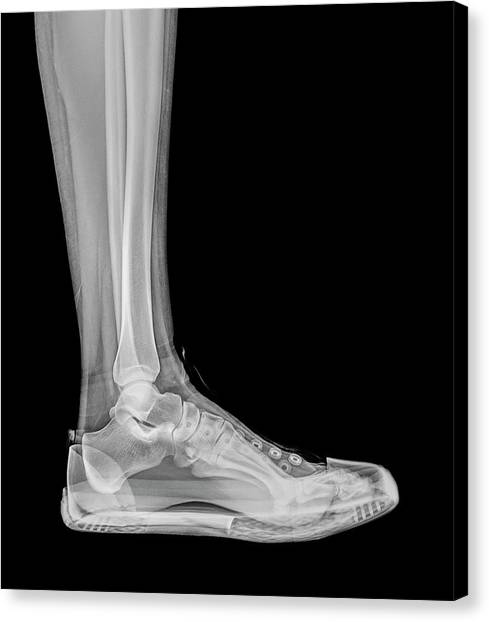 Ankles Canvas Print - Trainers X-ray by Photostock-israel