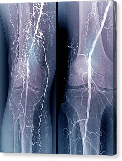 Diabetes Canvas Print - Treatment For Blocked Femoral Artery by Zephyr/science Photo Library