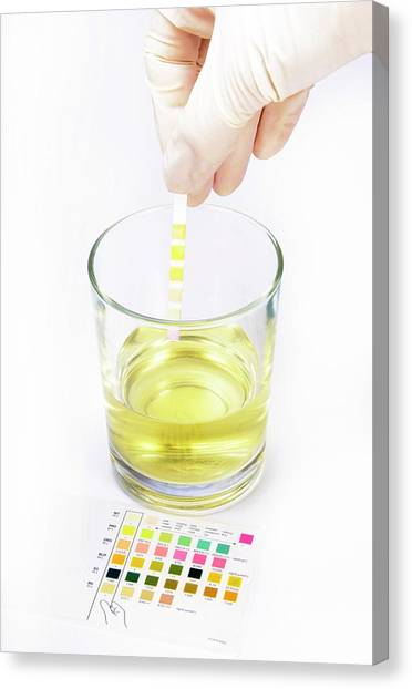 Reference Canvas Print - Urine Home Test Kit by Cordelia Molloy
