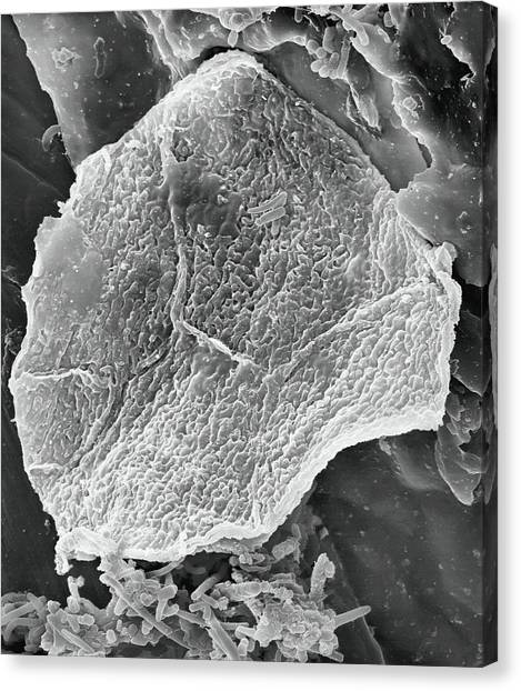 Floss Canvas Print - Used Wax Dental Floss by Dennis Kunkel Microscopy/science Photo Library