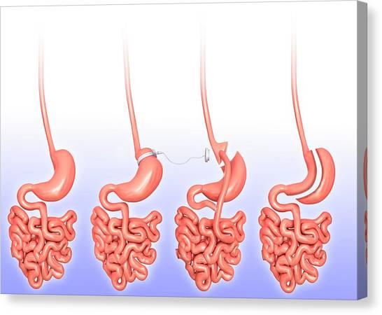 Internal Organs Canvas Print - Weight Loss Surgery by Pixologicstudio