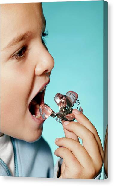 Braces Canvas Print - Young Boy With A Dental Retainer by Mauro Fermariello/science Photo Library