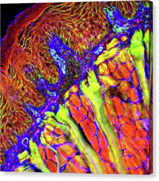 Tongue Tissue Canvas Print by R. Bick, B. Poindexter, Ut Medical School